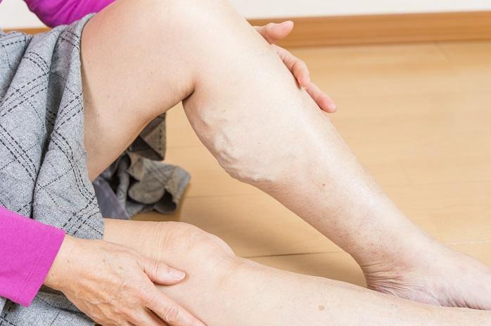 下肢静脈瘤の症状をしめすふくらはぎ
