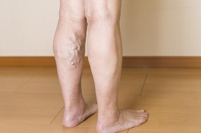 下肢静脈瘤がみつかったふくらはぎ