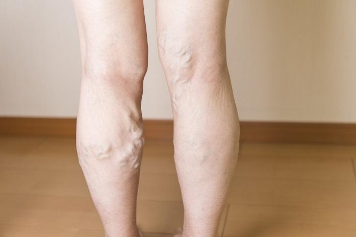 ふくらはぎに下肢静脈瘤