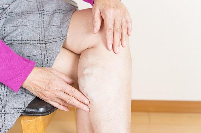 下肢静脈瘤にかかった女性の足