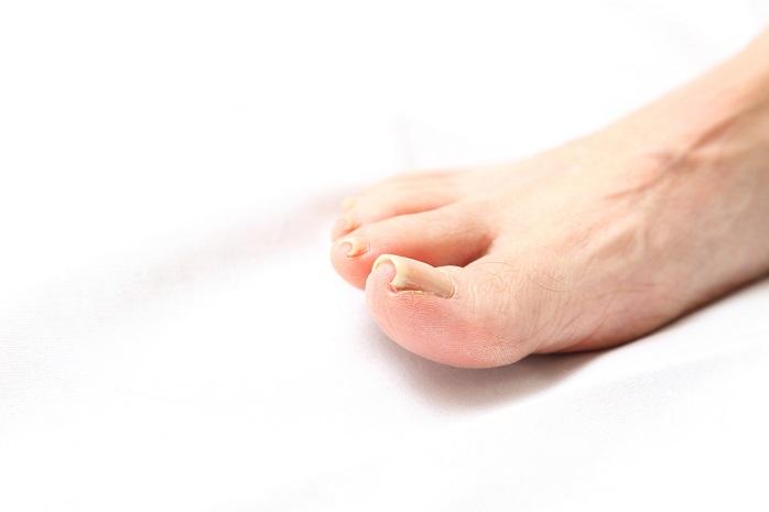 足の巻き爪の写真