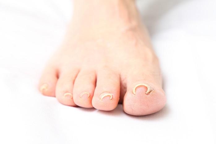 足の巻爪の写真