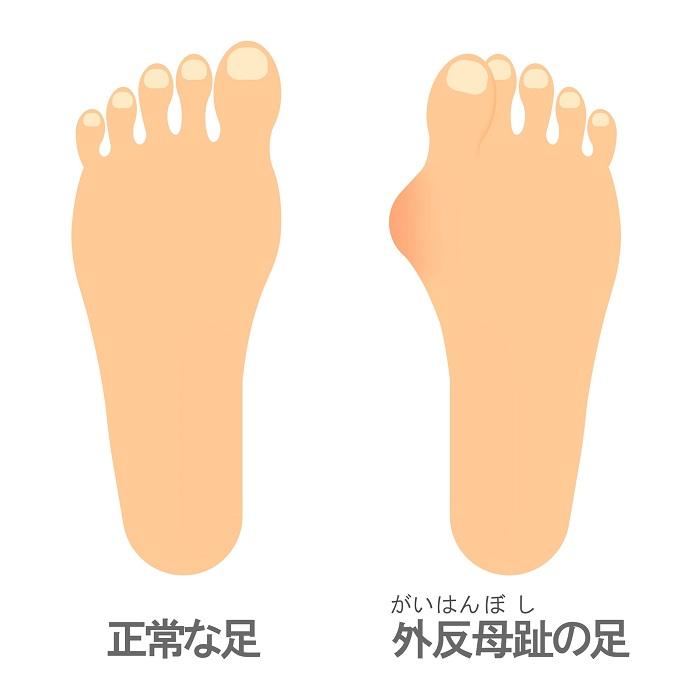 正常な足と外反母趾の足の比較イラスト