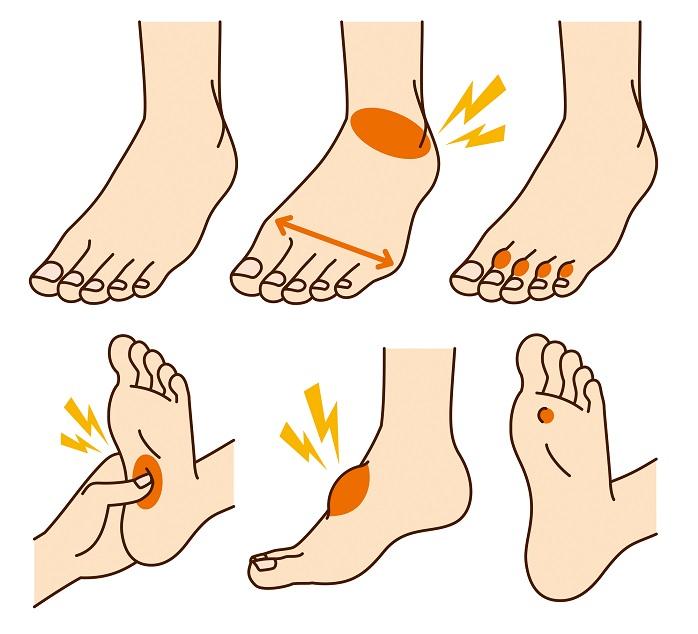 足のトラブルのイラスト