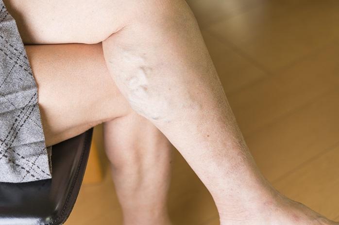 ふくらはぎに下肢静脈瘤がある女性の写真